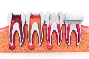 stages of a root canal treatment